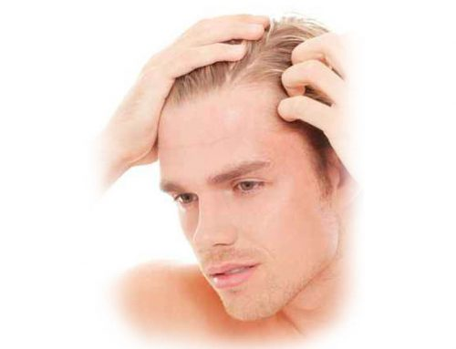 Kopfhautprobleme – fettig, schuppig oder irritiert